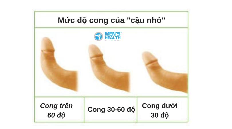 muc-do-cong-duong-vat