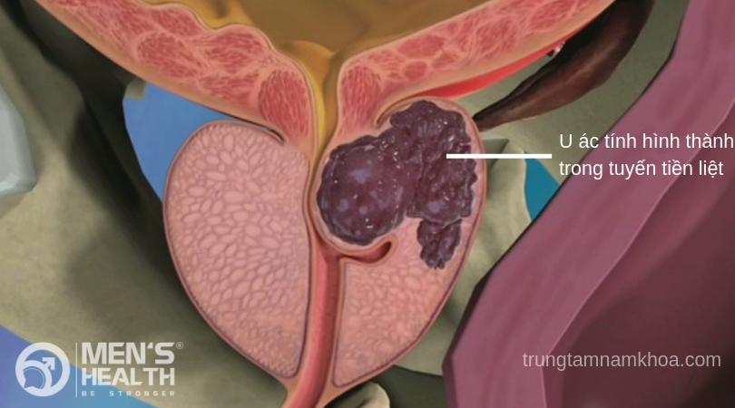 Giai đoạn đầu ung thư tiền liệt tuyến hầu như không có triệu chứng rõ ràng. Ung thư tiền liệt tuyến là loại u ác tính phát triển trong tuyến tiền liệt của nam giới.