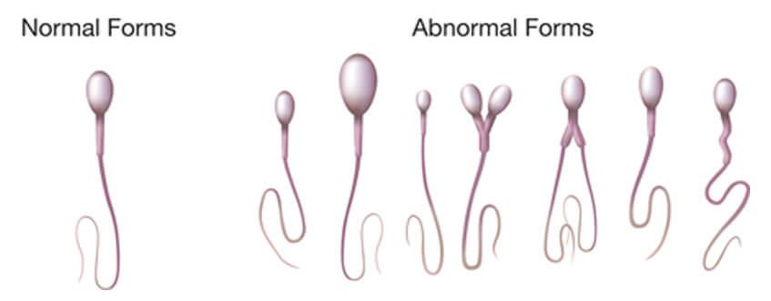trước khi xét nghiệm tinh dịch đồ bạn cần kiêng hoạt động tình dục, thủ dâm từ 3-5 ngày để đảm bảo lượng tinh trùng ở mức cao nhất