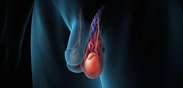 búi tĩnh mạch bị giãn ở nam giới còn được gọi là giãn tĩnh mạch thường tinh, bệnh lý giãn tĩnh mạch tinh này nếu không phát hiện và điều trị kịp thời sẽ có nguy cơ bị vô sinh