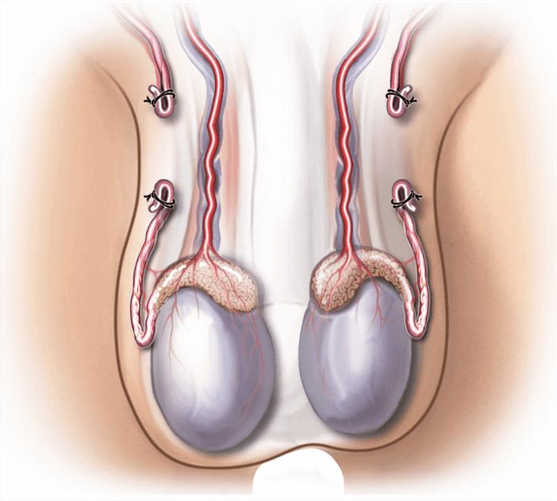 Phương pháp triệt sản ở nam giới: Thắt ống dẫn tinh